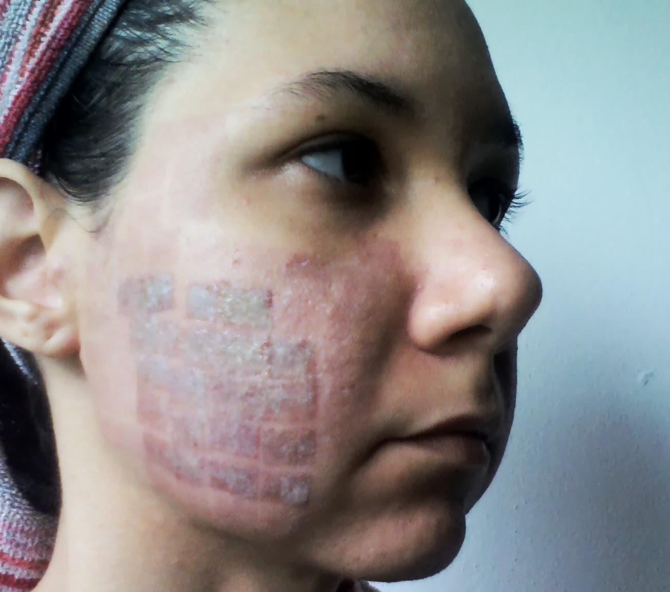 Schwarzer Schimmel Tapete : Oncologia, Acne e Rinoplastia: Dermato – Laser CO2 Fracionado – 2?