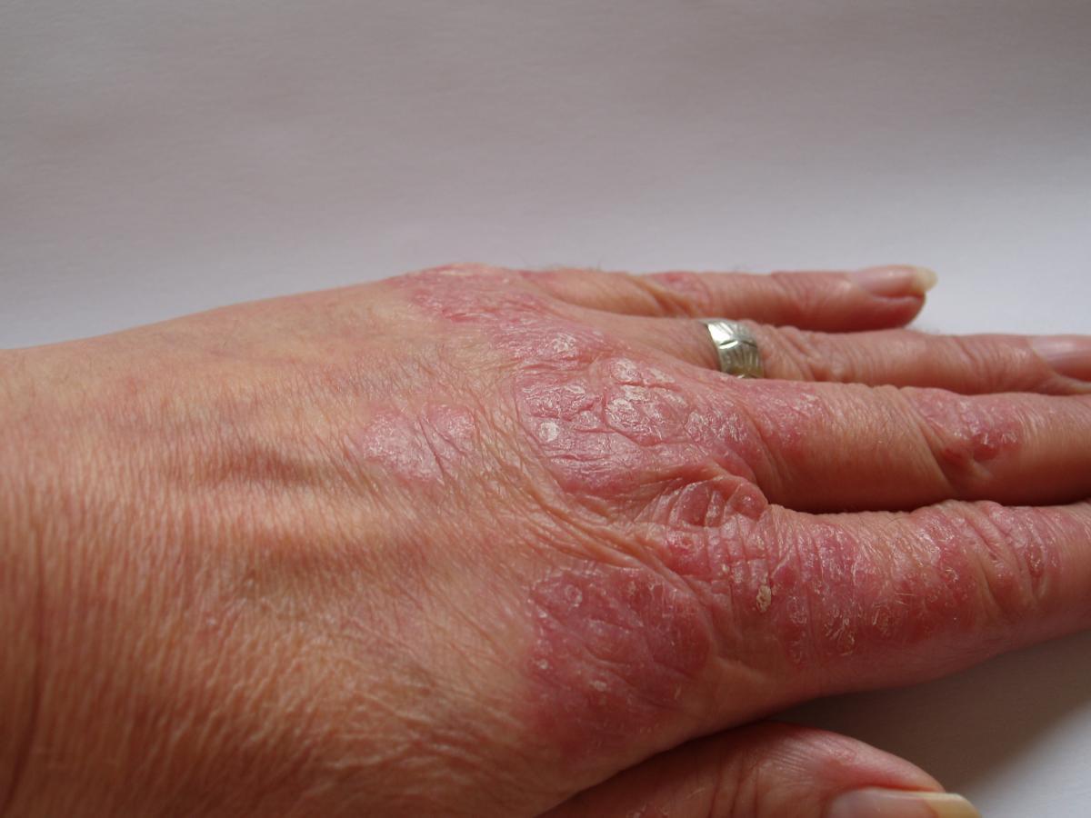 La psoriasis el tratamiento la carreta
