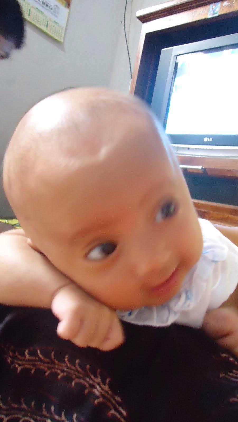 Bayi Gundul