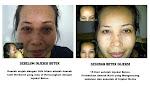 Botox Injeksi