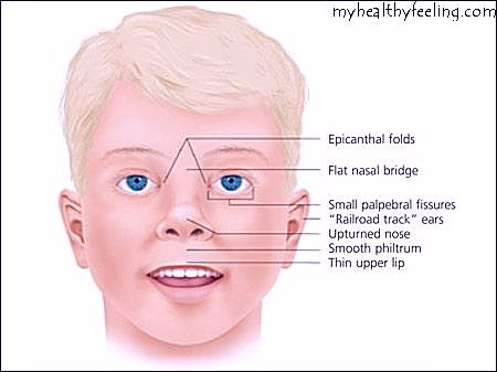 a look at the causes and effects of fetal alcohol syndrome 2017-5-30 the causes of fetal alcohol syndrome   the risk factors of fetal alcohol syndrome there are two major developments that is caused by alcohol on the baby's growth.