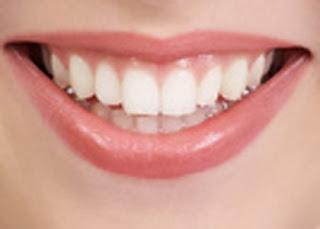 Buah-buahan Yang dapat Memutihkan Gigi