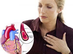 El infarto