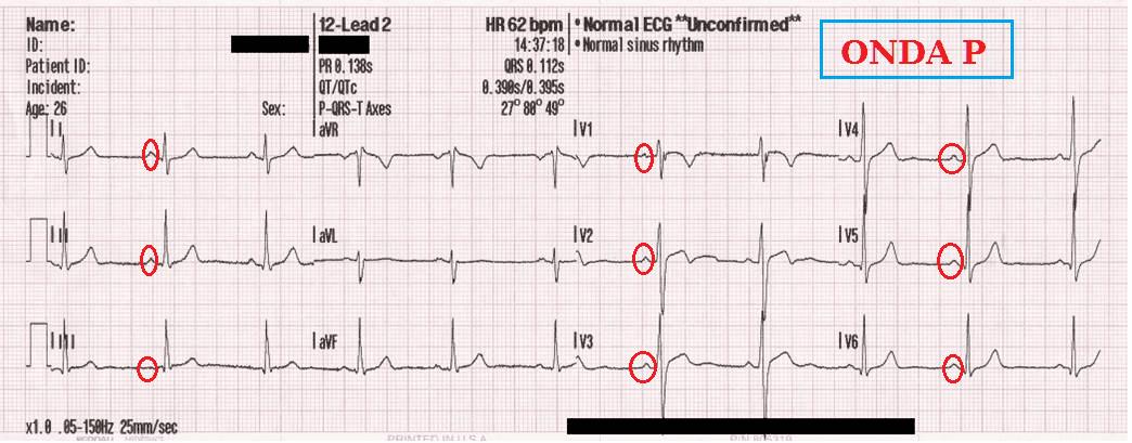 Electrocardiograma normal: onda P