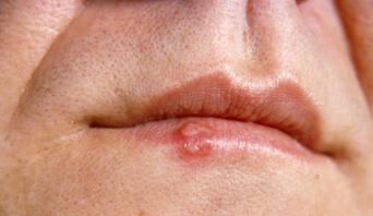 Boutons de fièvre après le sexe oral