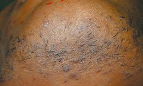 Ingrown Hair Neck Makeup/skin care tips:...