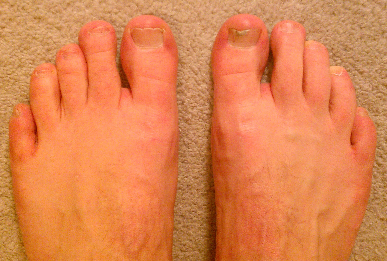 Erythromelalgia in Toes Info (Not CRPS Complex Regional Pain ...