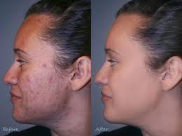 how to use tamanu oil for acne   beautyhealthplus