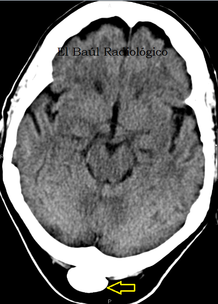 occipital+1.png