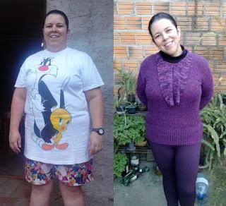 suziane burguez proença emagrecimento dieta obesidade redução estômago