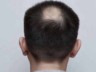 que sirve para la caida del cabello