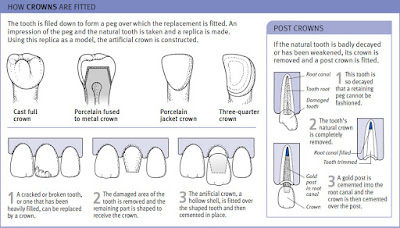 how crowns are fitted