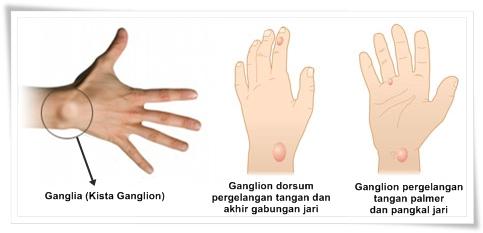 Cara Menyembuhkan Ganglia (Kista Ganglion)