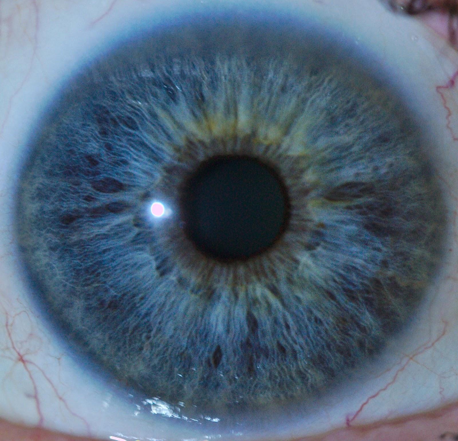 Escepticismo sobre la iridología