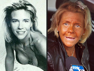 Tan mom before and after tanning beds.