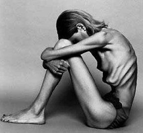 Starke Behaarung Hirsutismus: Anzeichen, Symptome