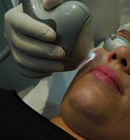 Vasinhos na face | Clínica Weiss | Hugo Weiss Dermatologia