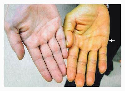 Penyebab dan Pencegahan Penyakit Kuning