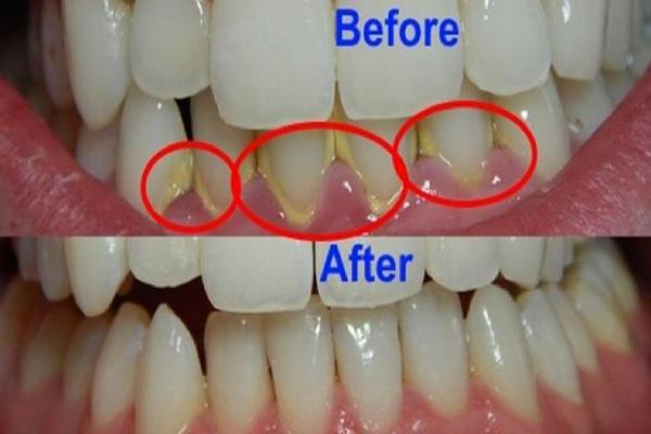 Mudah Cepat Dan Praktis Ini 7 Cara Menghilangkan Karang Gigi