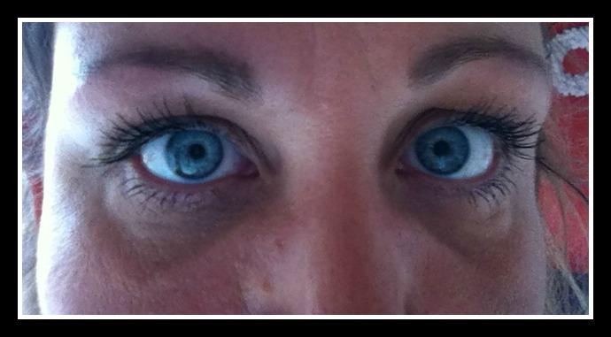 små knopper under øjnene