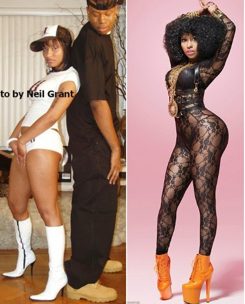 nicki minaj buttocks implants before and after