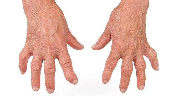 La artrosis no sólo es de gente mayor
