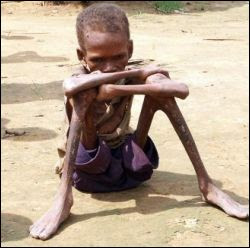 expressyourselve: Third World Starvation