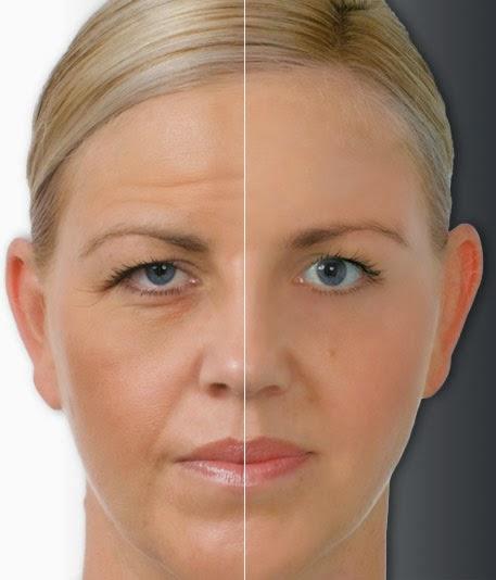 Best Anti Aging Treatment