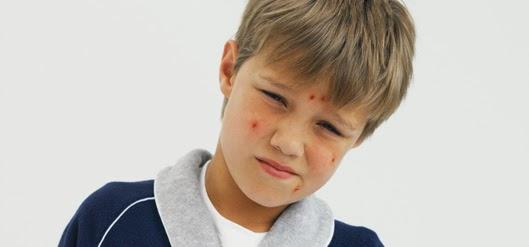 Baños En Ninos Con Varicela:Riesgo de contagio de la varicela