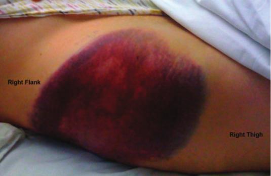 Sin embargo, los hematomas de la pared abdominal lateral después de ...