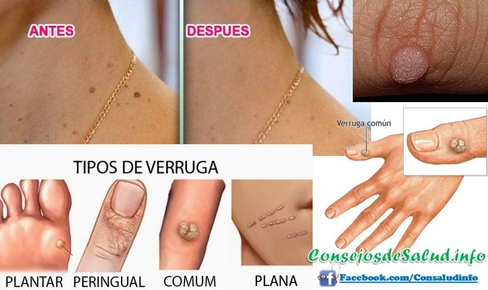Si es posible atopichesky la dermatitis