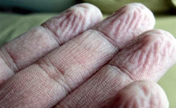 Γιατί τα δάκτυλα ζαρώνουν στο νερό