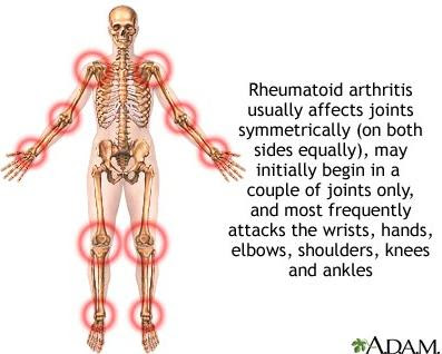 Arthritis Advice That Everyone Should Read About