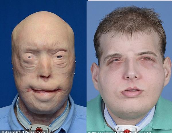 Pat Hardison fireman having face transplant