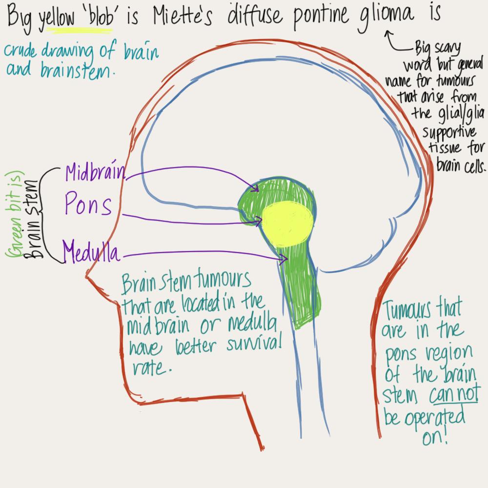 brain stem tumour