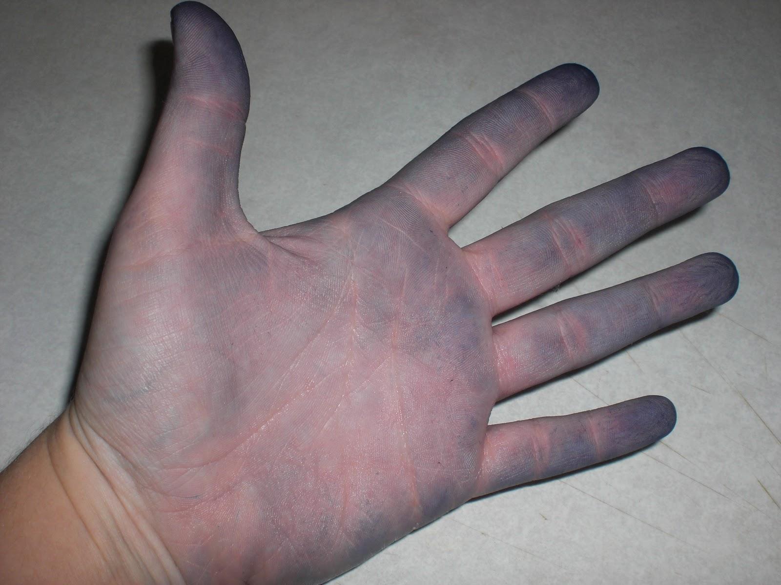Scripps Health - Skin discoloration - bluish