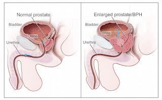 BPH Benign Prostatic Hyperplasia