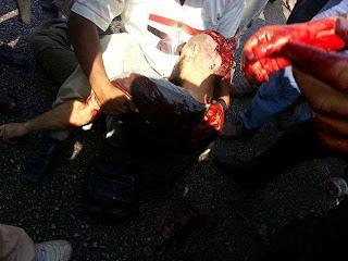 [ Gambar ] Rakyat Mesir Penyokong Dr Morsi Yang Ditembak Oleh Tentera Sekular Mesir  Dikepala | [ MESIR HARI INI ] IN SYA ALLAH SYURGA UNTUK BELIAU |