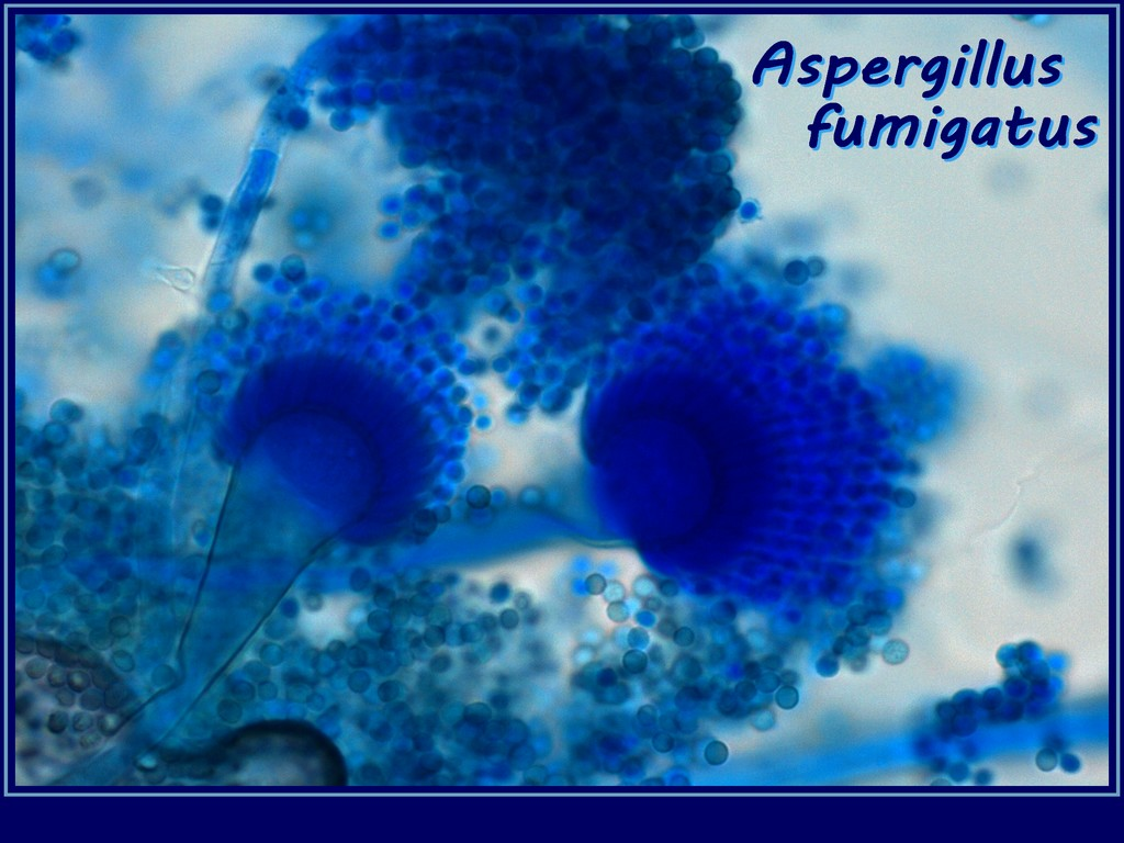 Fun With Microbiology Whats Buggin You Aspergillus Fumigatus
