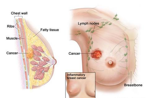 Cara mencegah kanker payudara secara alami