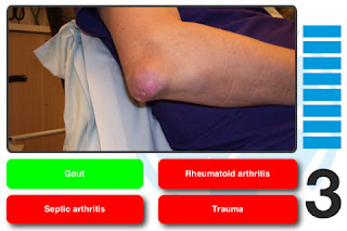 Ward Round Picture Quiz Screen shot showing gouty arthritis of elbow