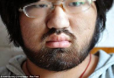 دواء يحول فتاة إلى رجل بذقن كثيف الشعر