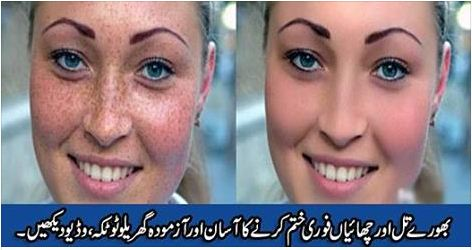 HEALTH, totkay, Desi Totkay, how to get rid, frecless fat, how to get rid of pimples, <p>In order to lighten your freckles, you will need baking soda, lemon juice, honey, and an egg. This works on any skin pigmentation, including age spots. After using this DIY mask, you will need to prevent more freckles from popping up. You can do this by using a moisturizer containing SPF every day. Keep some sunblock handy, as well as a hat,
