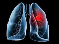 Obat Tradisional Kanker Paru-Paru