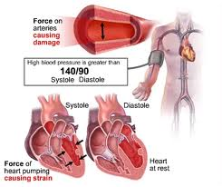 high blood pressure conditions-treatments