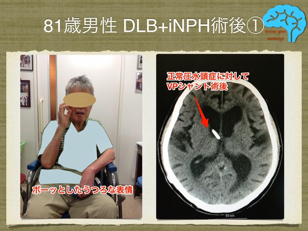 レビー小体型認知症と正常圧水頭症の合併 頭部CT