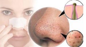 Những cách trị mụn đầu đen hiệu quả nhất