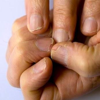 remedios caseros para tener uñas fuertes