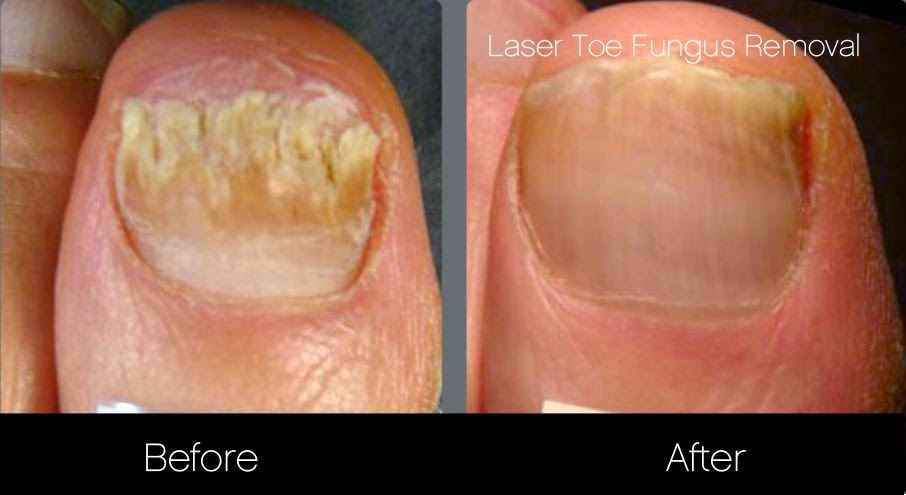 Treat your toe fungus with laser treatments