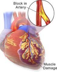 Pengobatan Tradsisional Radang Otot Jantung (Miokarditis)